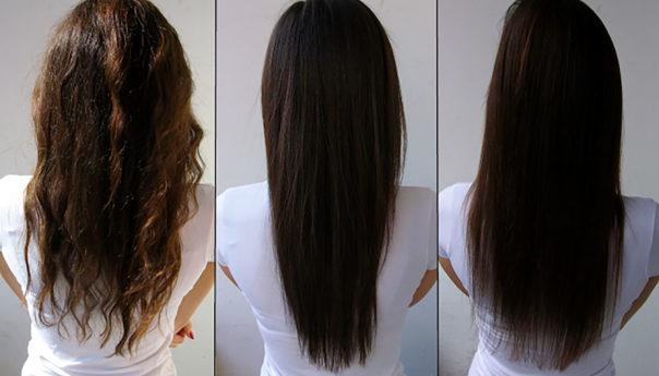ماذا تعرف عن زراعة الشعر للنساء في تركيا